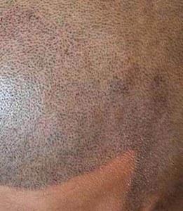 Do I need Scalp Micropigmentation