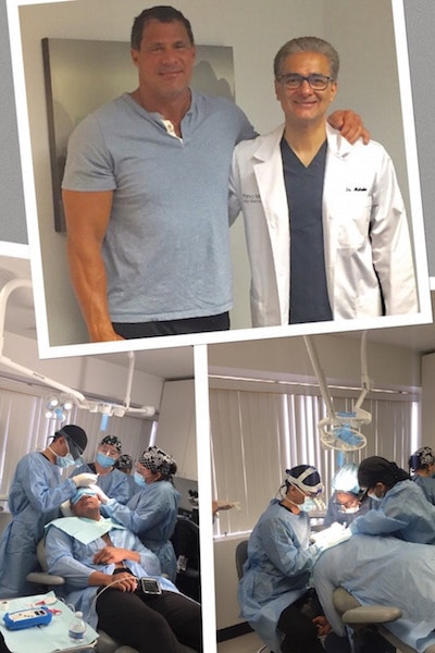 Before and During Jose Canseco's Hair Transplant Journey