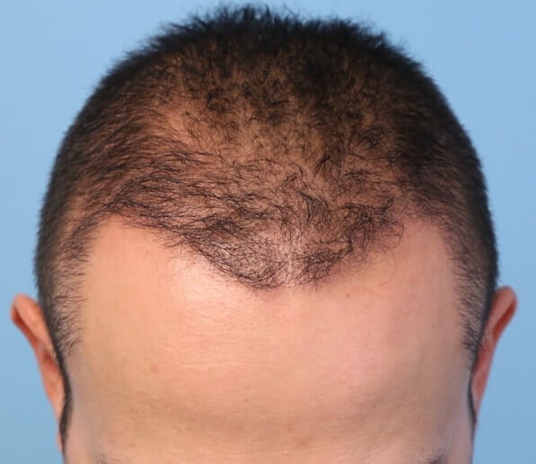 Thinning hair after hair transplant