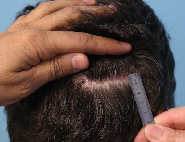 Scar after strip hair transplant