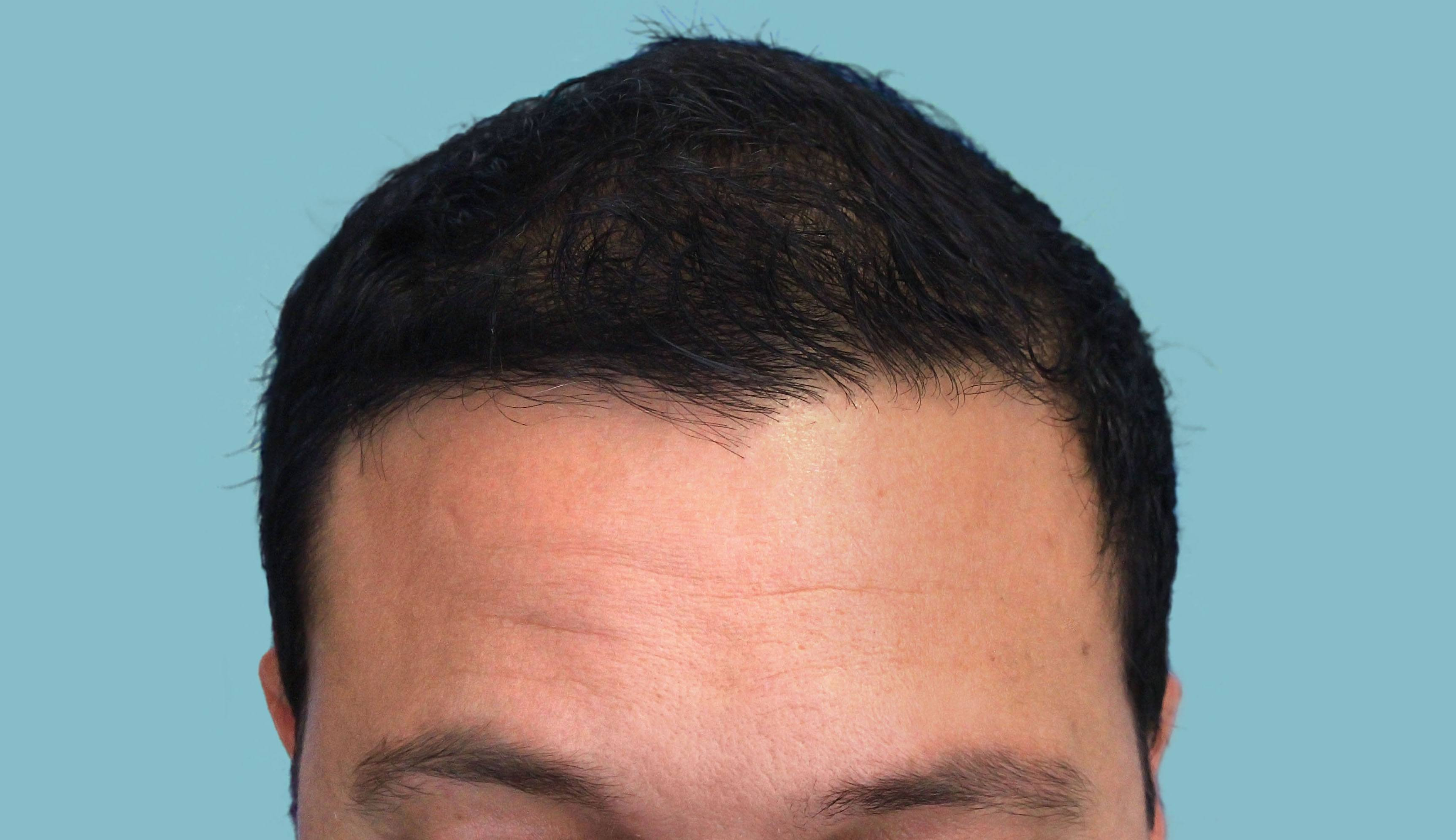 After-FUE Patient