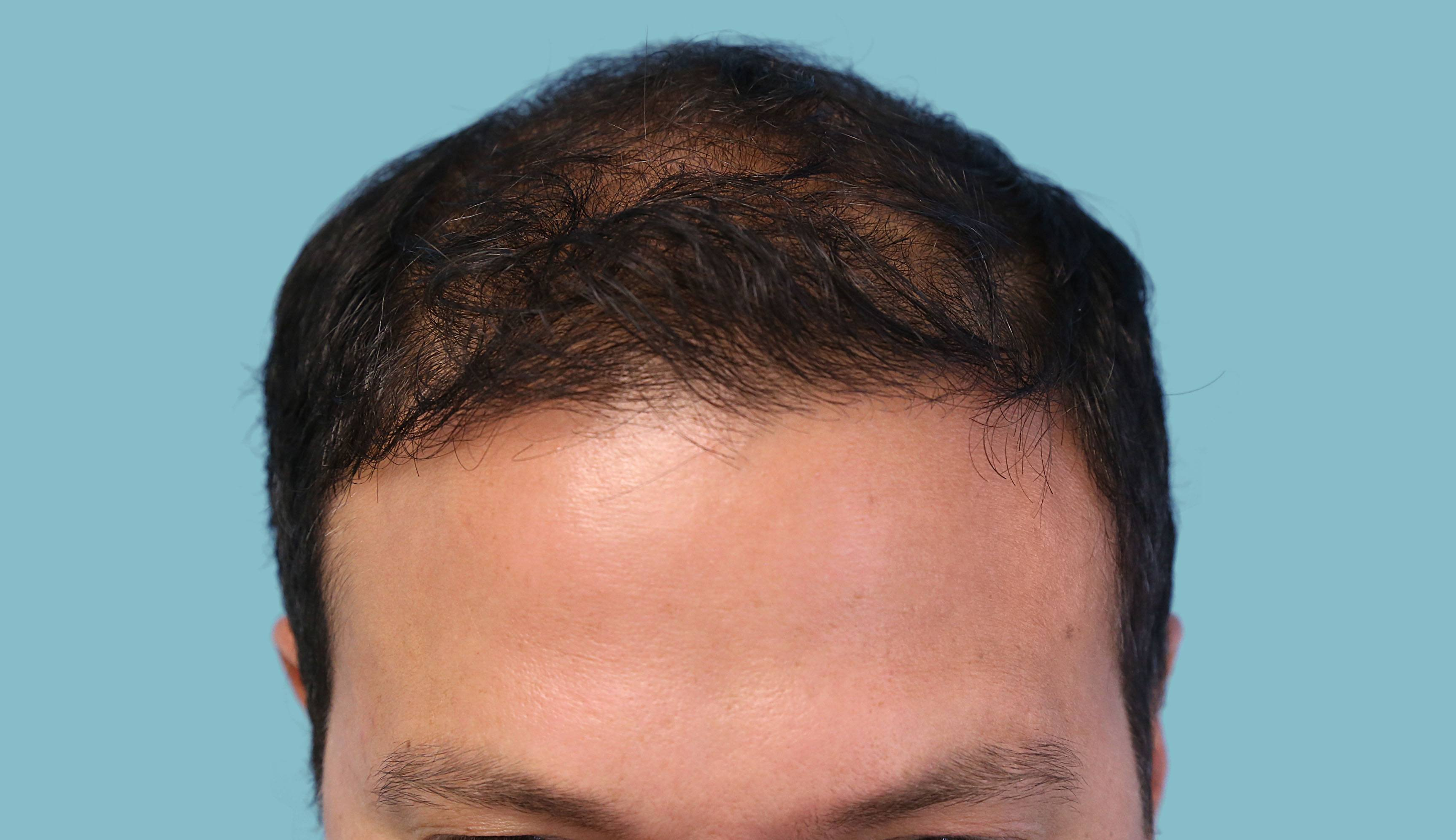 Before-FUE Patient