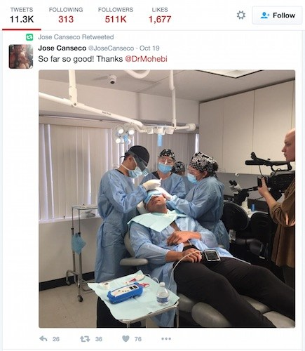 Jose Canseco's Hair Transplant