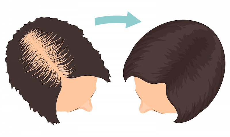 Woman Hair Transplant After a procedure