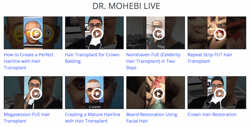 Dr. Mohebi Live Hair Transplant procedure videos