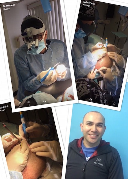 Live Hair Transplant Snapchat