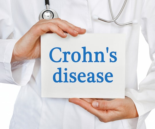 Crohn's Illness