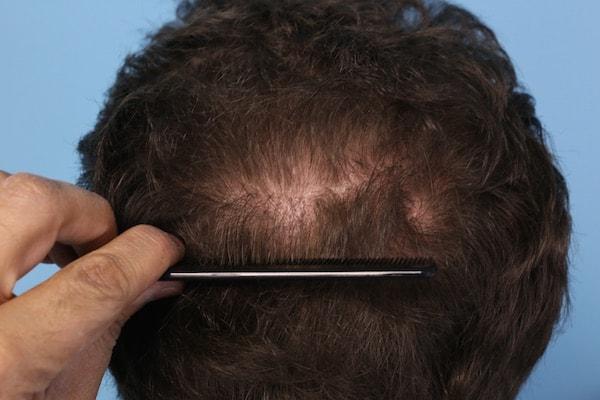 Scalp Psoriasis: Hair Transplant