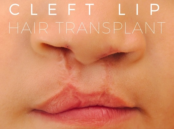 Hair Transplant for Cleft Lip
