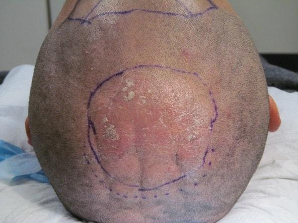 psoriasis arthritis vorbeugung caspar kriterien.jpg