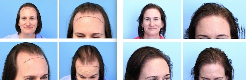 Hair Transplant on a Female Patient
