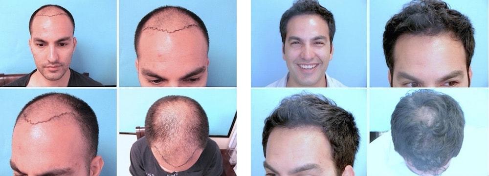 Hair Transplant by Parsa Mohebi, MD