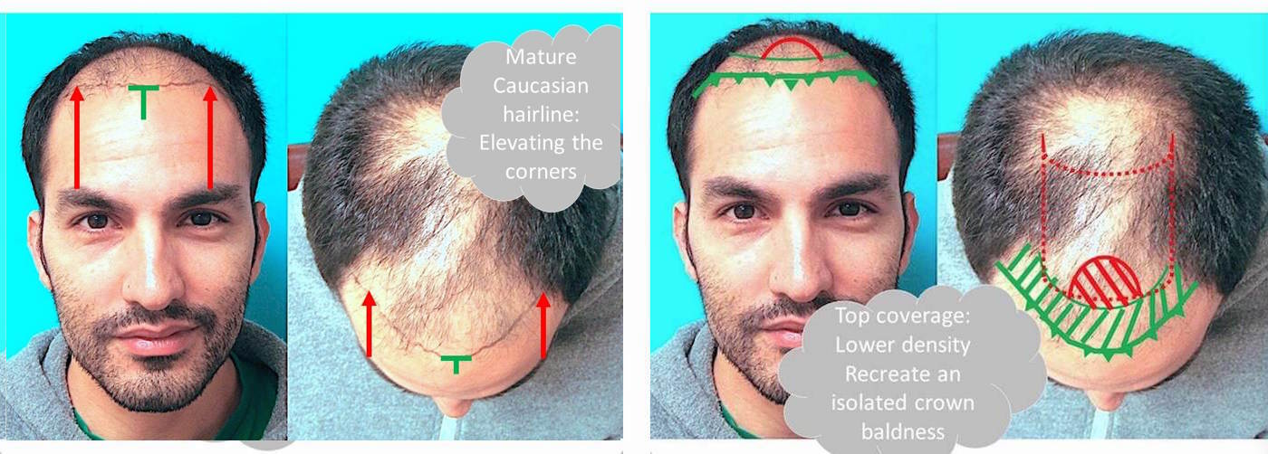 Planning for graft placement for hair transplantation