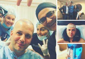 Hair Transplant Journey