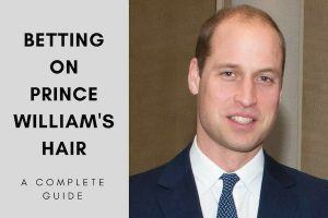 Hair transplant for Prince William