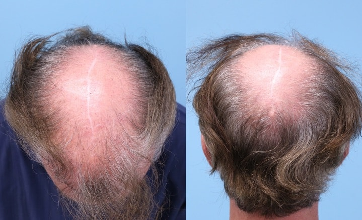 scalp reduction surgery scar