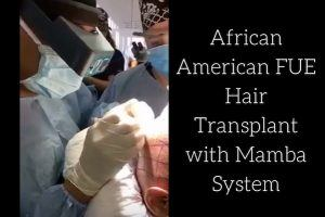 African American FUE