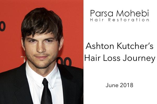 Hair loss journey for Ashton Kutcher