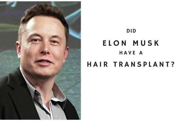 Did Elon Musk have a hair transplant