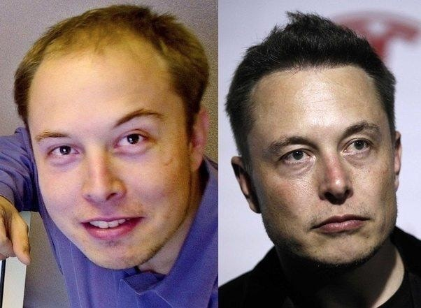 elono musk before and after hair transplant