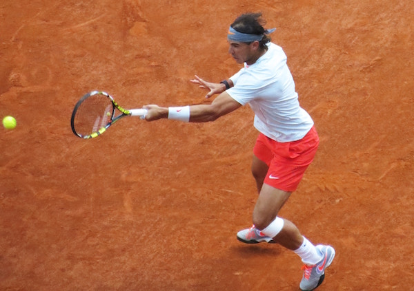 FUE Hair Transplant Rafael Nadal