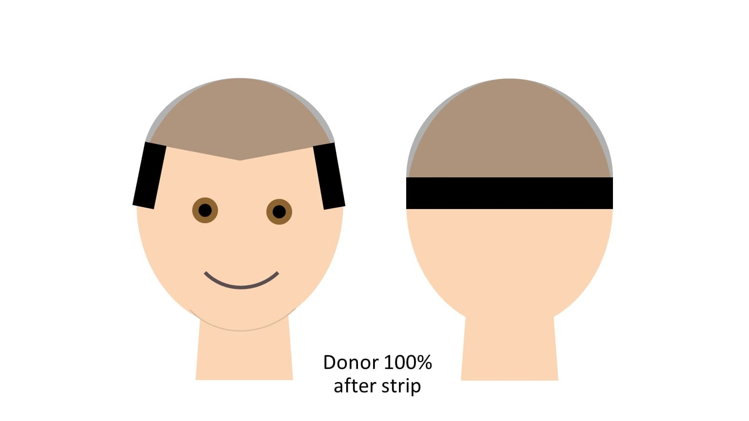 After Strip hair transplant