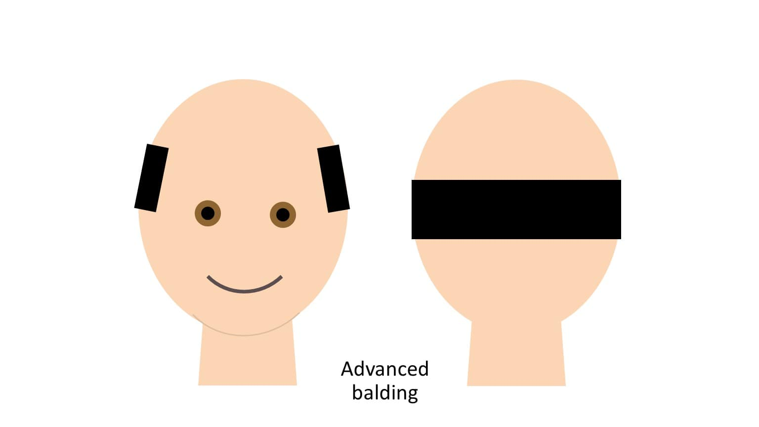 FUE hair transplant for advanced balding