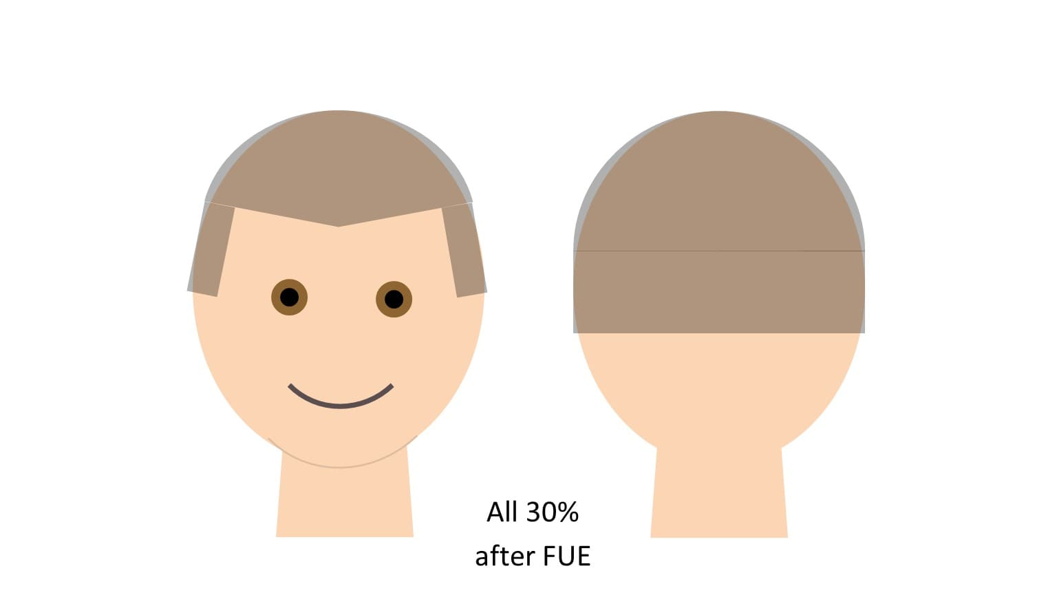 Donor Depletion FUE hair transplant