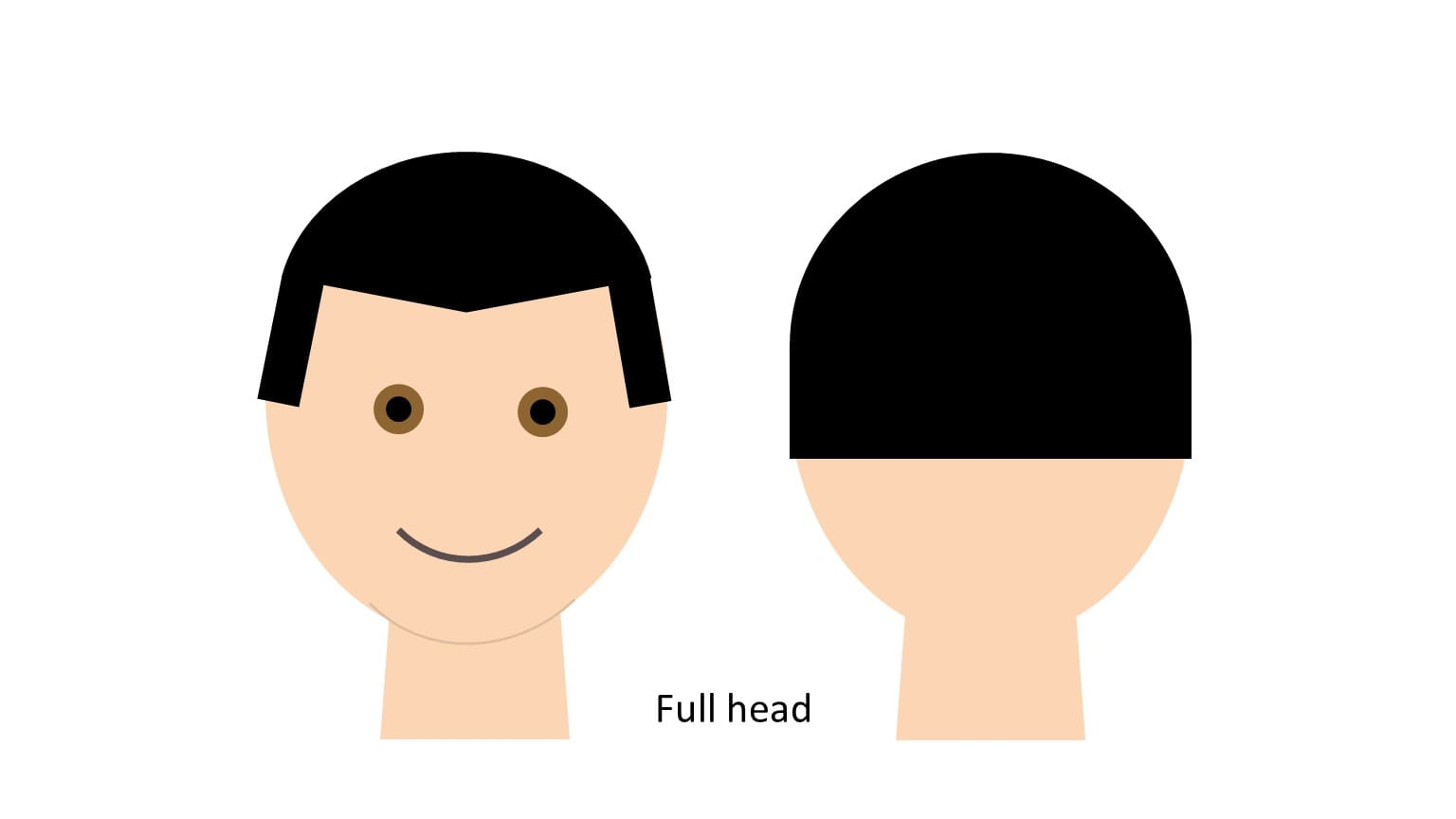 FUE hair transplant total evenness