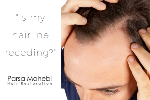 Receding Hairline how to tell