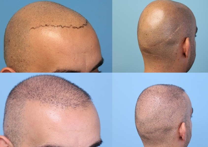 Traditional Strip Procedure donor area scar