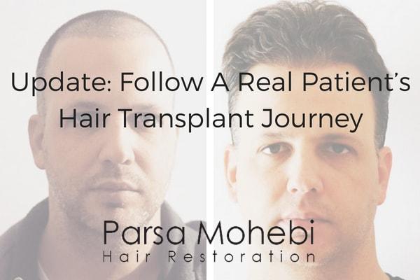 Parsa Mohebi Hair Restoration, real hair transplant journey