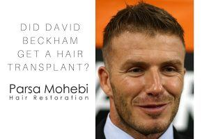 Did David Beckham have a hair transplant?