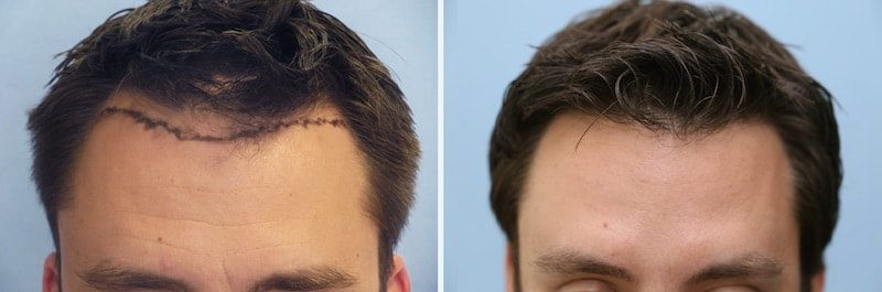 Perfect Hairline on a patient with male hair loss