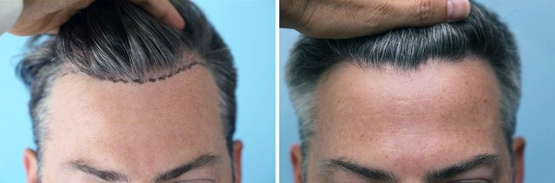 Power hairline for Dr. Parsa Mohebi's patient