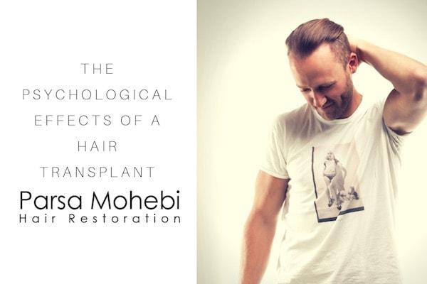 Hair transplant psychology