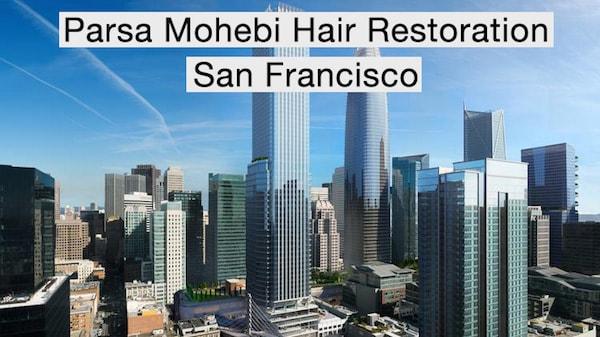 San Francisco Hair Transplant | Parsa Mohebi
