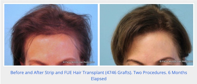 Before and After Female Hair Transplant