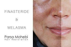 finasteride and melasma