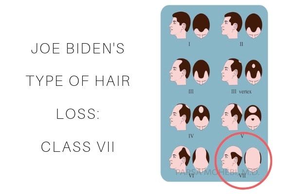 Joe Biden Hair Loss Class