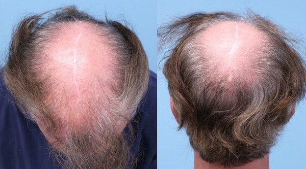 Scarring after scalp reduction