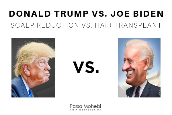 Donald Trump vs Joe Biden vs Scalp Reduction
