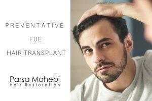 Preventative FUE Hair Transplant