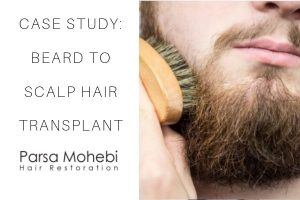 beard to scalp fue transplant case study