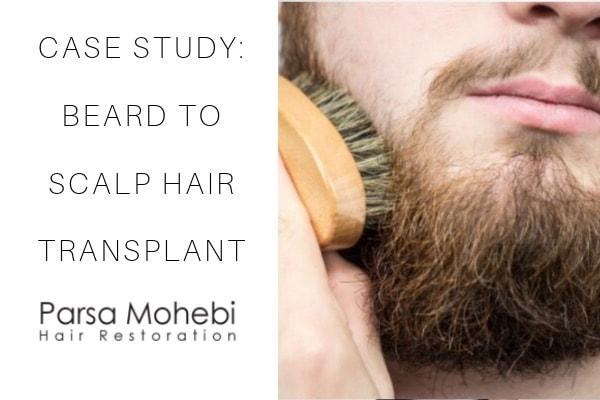 beard to scalp fue transplant case study