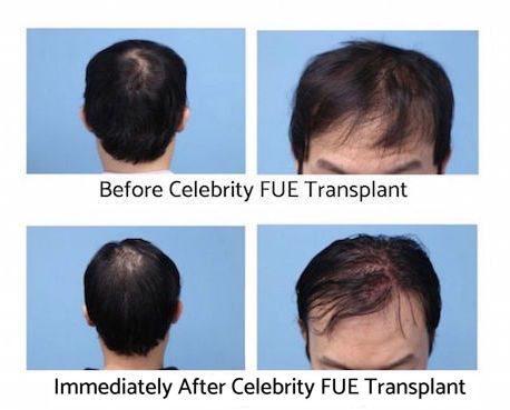 Celebrity hair transplant after