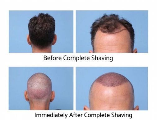 After hair transplant - shaved look