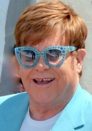 Elton John Hair Transplant