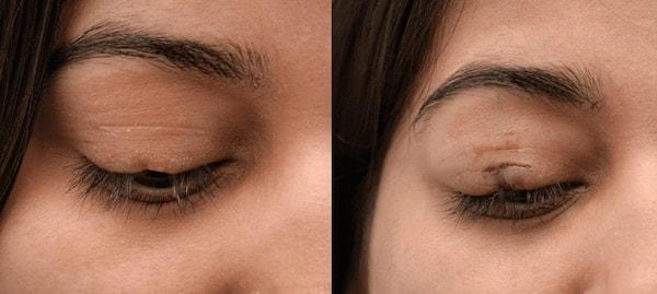 eyelash transplant before and after