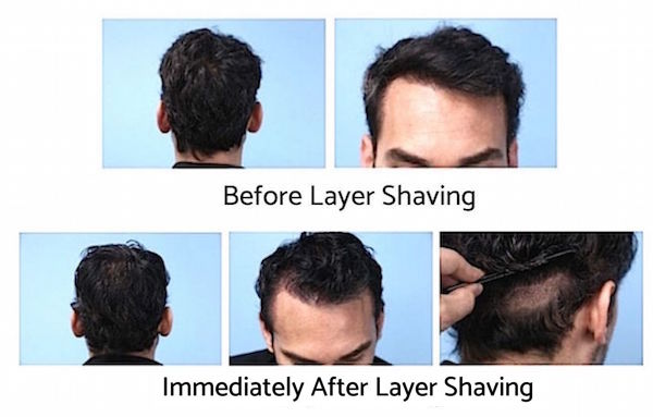 After layer shaving look for hair transplant